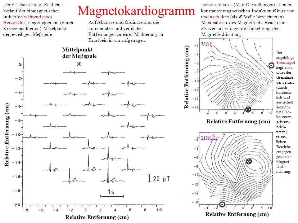 """Magnetokardiogramm """"Grid -Darstellung."""