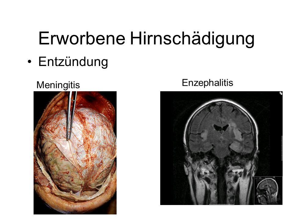Erworbene Hirnschädigung Entzündung Enzephalitis Meningitis
