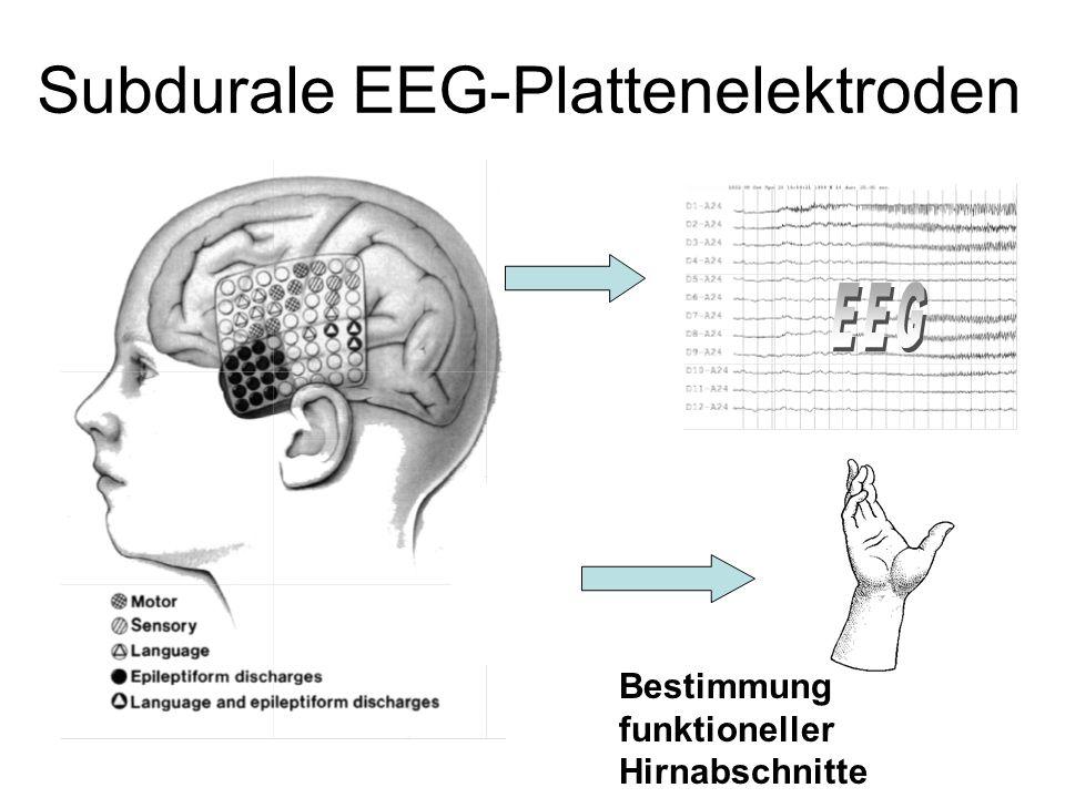 Subdurale EEG-Plattenelektroden Bestimmung funktioneller Hirnabschnitte