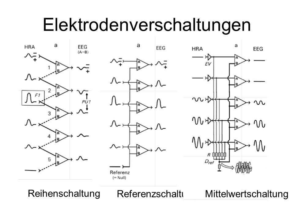 Elektrodenverschaltungen Reihenschaltung Referenzschaltung Mittelwertschaltung