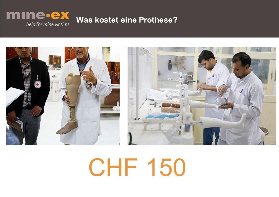 Was kostet eine Prothese CHF 150