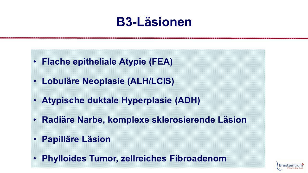 B3 - Läsionen Einflußfaktoren auf den PPW für Malignität Borderline breast lesions: comparison of malignancy underestimation rates with 14- gauge core needle biopsy versus 11-gauge vacuum-assisted device Viviana Londero, Eur Radiol 2011 Jun 12;21(6):1200-6  Overall malignancy underestimation rate was 12.7% at 14-g CNB and 12.5% at 11-g VAB ( n=4764 biopsies)  Based on excision histology or follow-up, lesion-specific underestimation rates were: benign papillomas: 14-g CNB 11%, 11-g VAB 0%; RSL: 14-g CNB 6%, 11-g VAB 4%; LN: 14-g CNB 40%, 11-g VAB 23%; ADH: 14-g CNB 33%; 11-g VAB 22%.