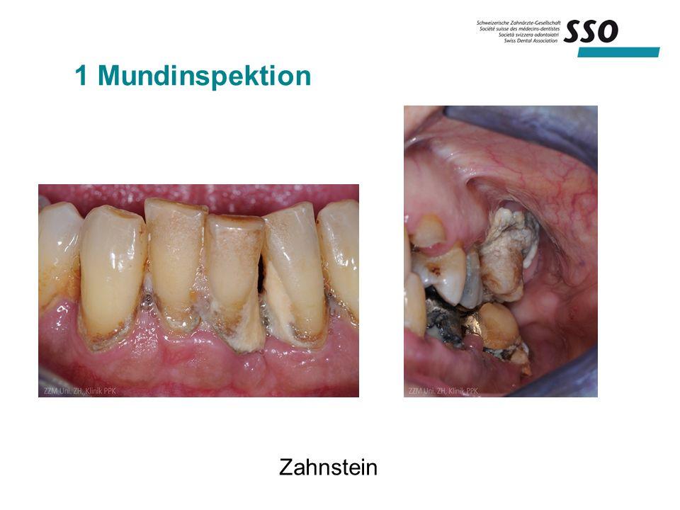 1 Mundinspektion Zahnstein
