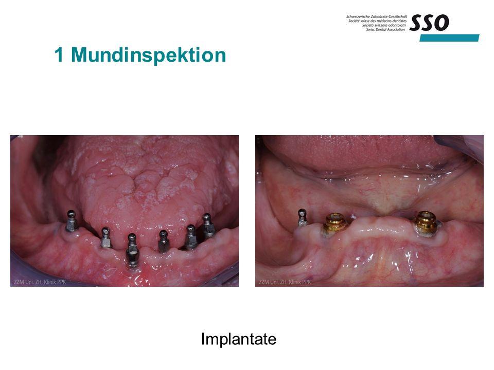 1 Mundinspektion Implantate