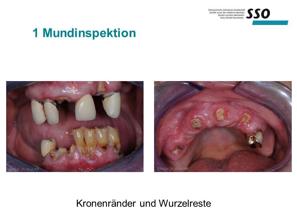 1 Mundinspektion Kronenränder und Wurzelreste