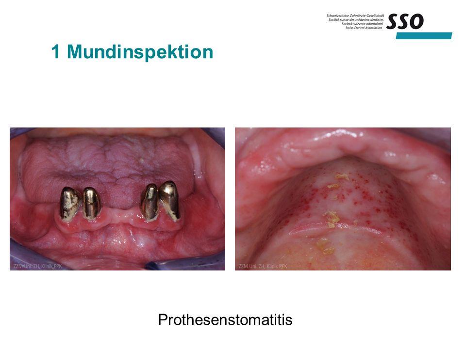 1 Mundinspektion Prothesenstomatitis