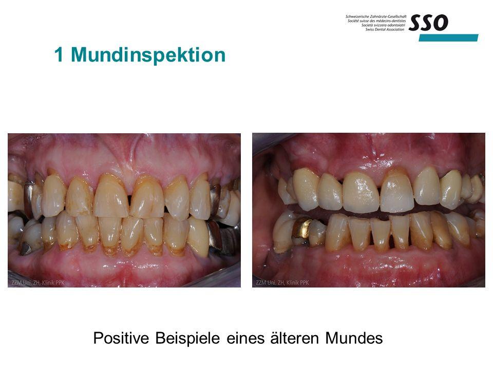 1 Mundinspektion Positive Beispiele eines älteren Mundes