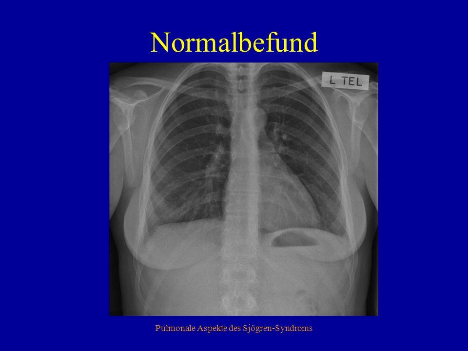 Pulmonale Aspekte des Sjögren-Syndroms Normalbefund