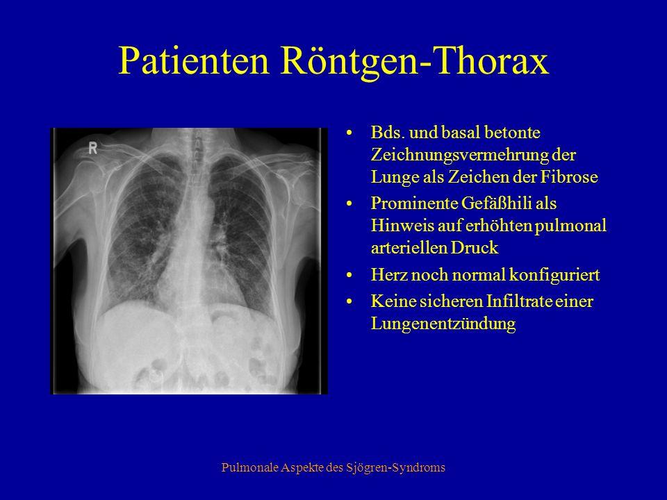 Pulmonale Aspekte des Sjögren-Syndroms Patienten Röntgen-Thorax Bds.