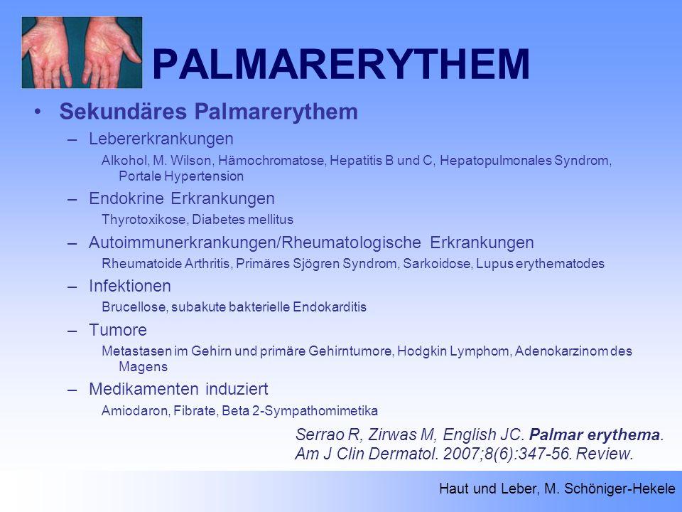 PALMARERYTHEM Haut und Leber, M. Schöniger-Hekele Serrao R, Zirwas M, English JC. Palmar erythema. Am J Clin Dermatol. 2007;8(6):347-56. Review. Sekun