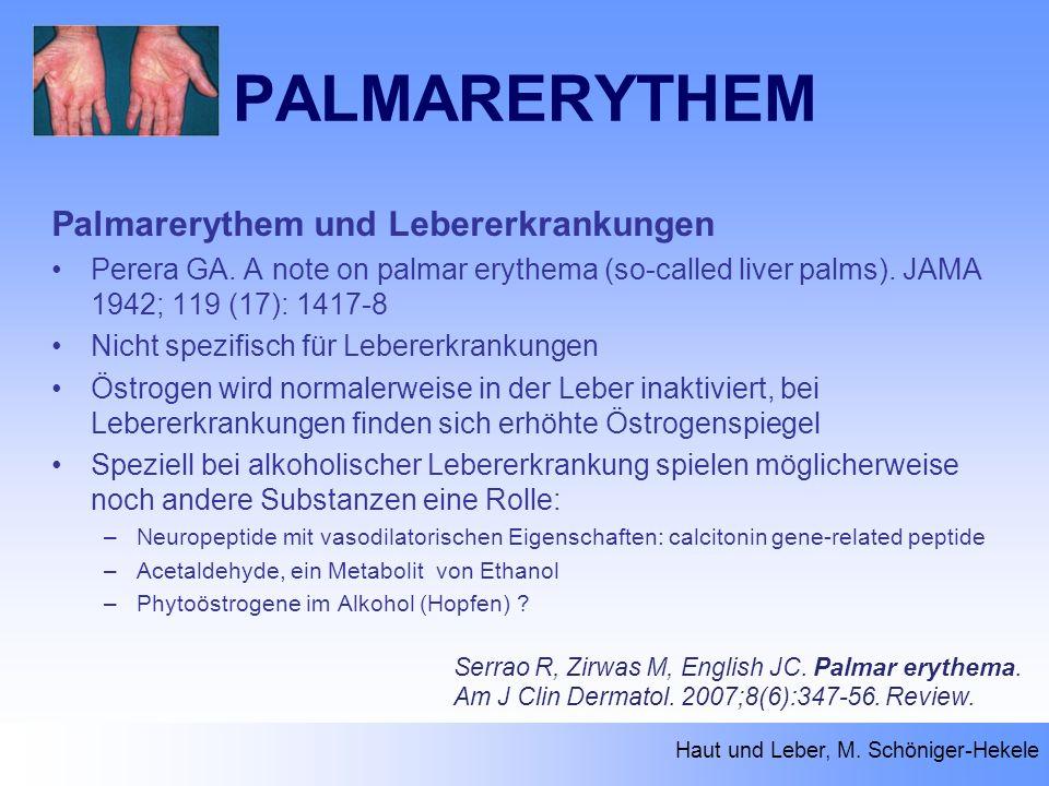 PALMARERYTHEM Haut und Leber, M. Schöniger-Hekele Serrao R, Zirwas M, English JC. Palmar erythema. Am J Clin Dermatol. 2007;8(6):347-56. Review. Palma