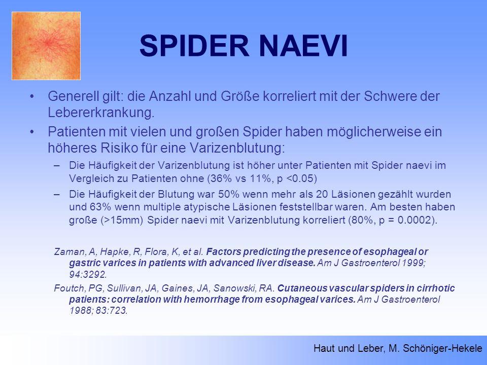 SPIDER NAEVI Generell gilt: die Anzahl und Größe korreliert mit der Schwere der Lebererkrankung. Patienten mit vielen und großen Spider haben mögliche