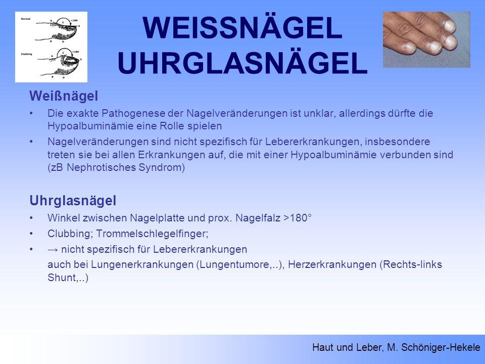 WEISSNÄGEL UHRGLASNÄGEL Weißnägel Die exakte Pathogenese der Nagelveränderungen ist unklar, allerdings dürfte die Hypoalbuminämie eine Rolle spielen N