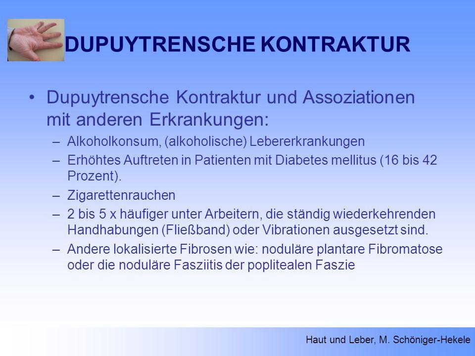 DUPUYTRENSCHE KONTRAKTUR Dupuytrensche Kontraktur und Assoziationen mit anderen Erkrankungen: –Alkoholkonsum, (alkoholische) Lebererkrankungen –Erhöht