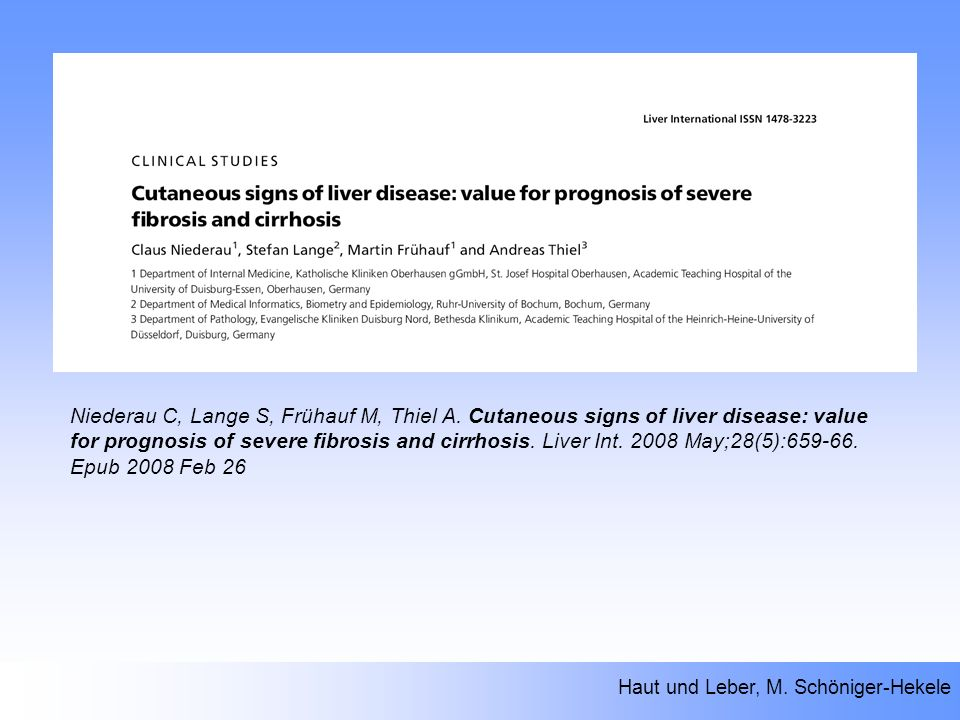 Niederau C, Lange S, Frühauf M, Thiel A. Cutaneous signs of liver disease: value for prognosis of severe fibrosis and cirrhosis. Liver Int. 2008 May;2