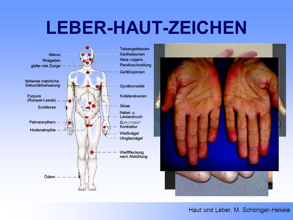 LEBER-HAUT-ZEICHEN Haut und Leber, M. Schöniger-Hekele