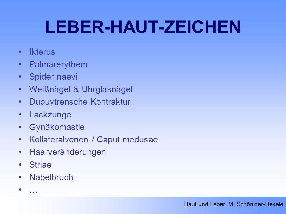 LEBER-HAUT-ZEICHEN Ikterus Palmarerythem Spider naevi Weißnägel & Uhrglasnägel Dupuytrensche Kontraktur Lackzunge Gynäkomastie Kollateralvenen / Caput
