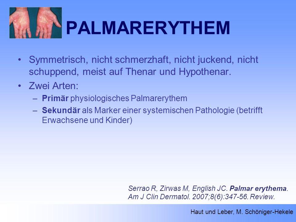 PALMARERYTHEM Haut und Leber, M. Schöniger-Hekele Serrao R, Zirwas M, English JC. Palmar erythema. Am J Clin Dermatol. 2007;8(6):347-56. Review. Symme