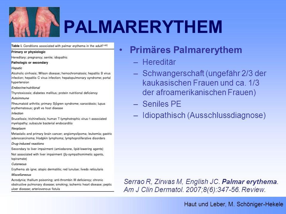 PALMARERYTHEM Haut und Leber, M. Schöniger-Hekele Serrao R, Zirwas M, English JC. Palmar erythema. Am J Clin Dermatol. 2007;8(6):347-56. Review. Primä