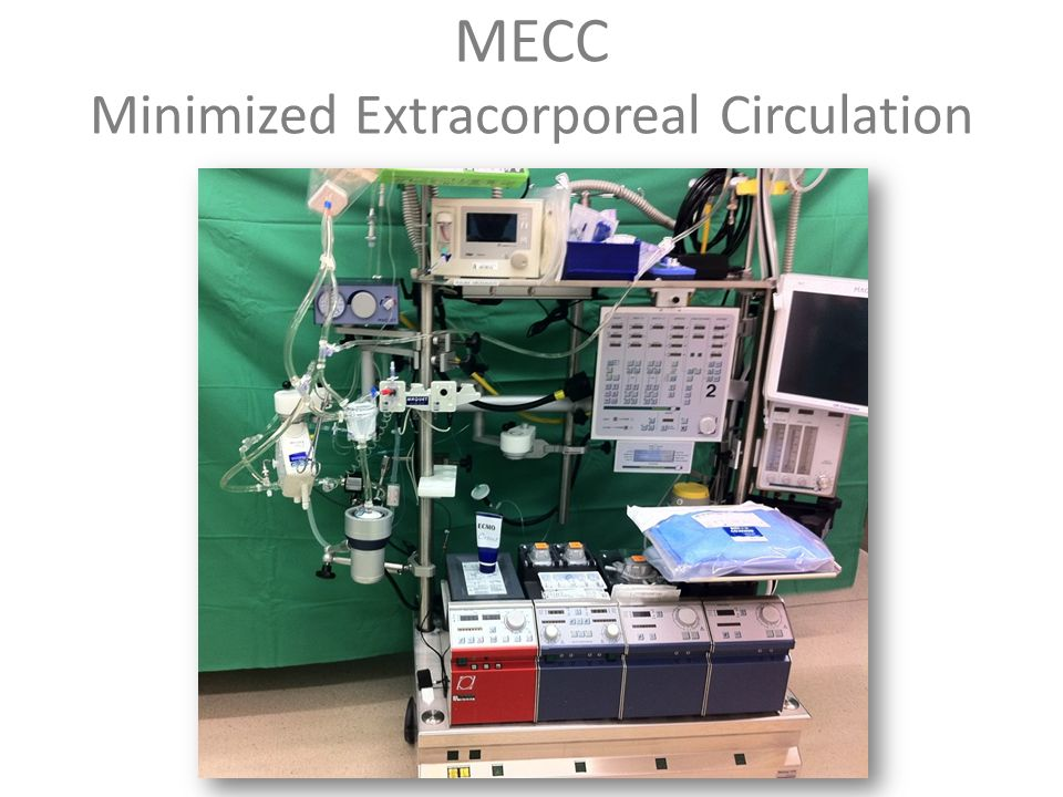 MECC Minimized Extracorporeal Circulation
