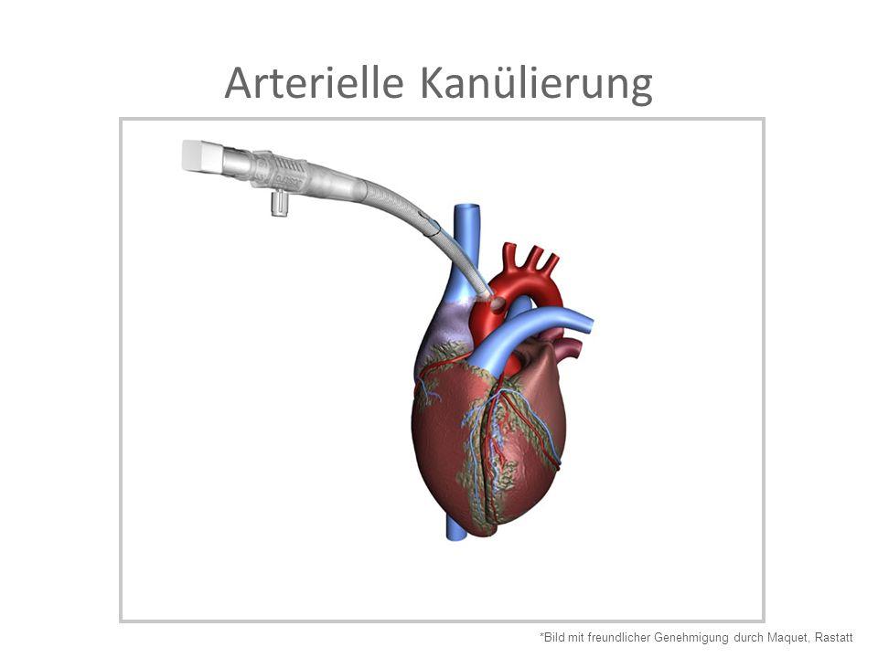 Arterielle Kanülierung *Bild mit freundlicher Genehmigung durch Maquet, Rastatt