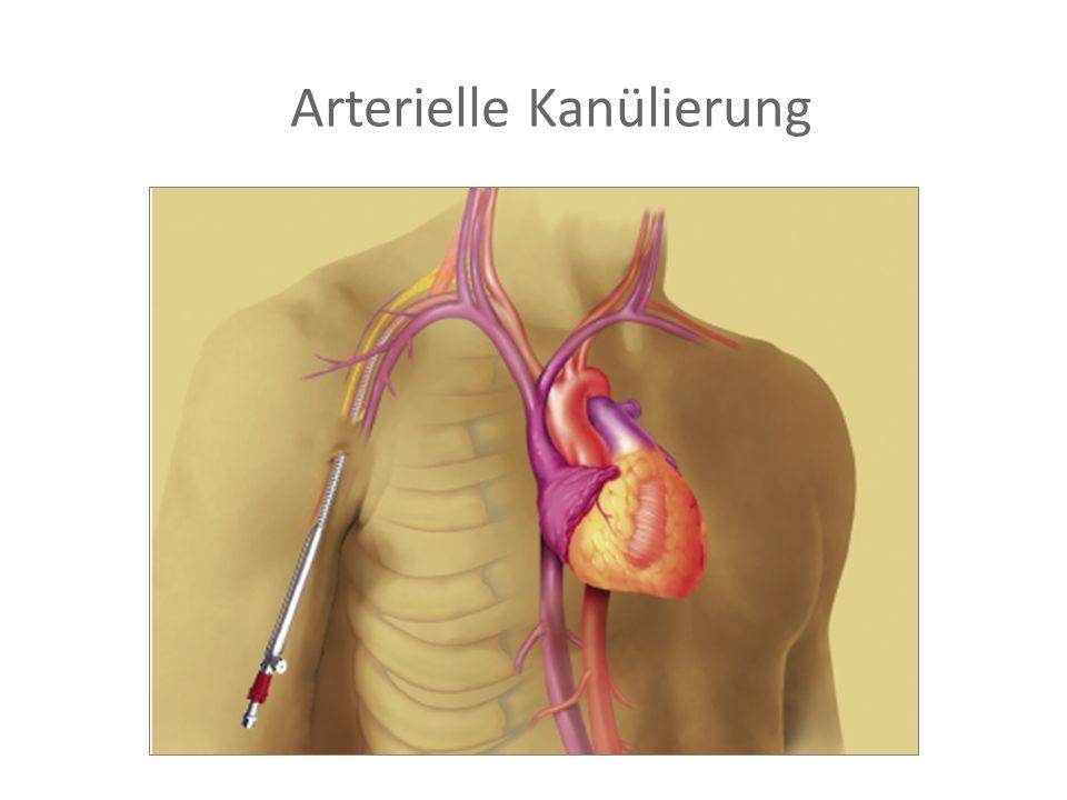 Arterielle Kanülierung