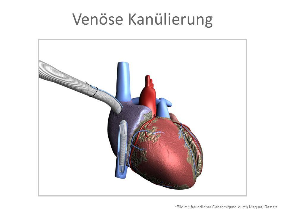 Venöse Kanülierung *Bild mit freundlicher Genehmigung durch Maquet, Rastatt