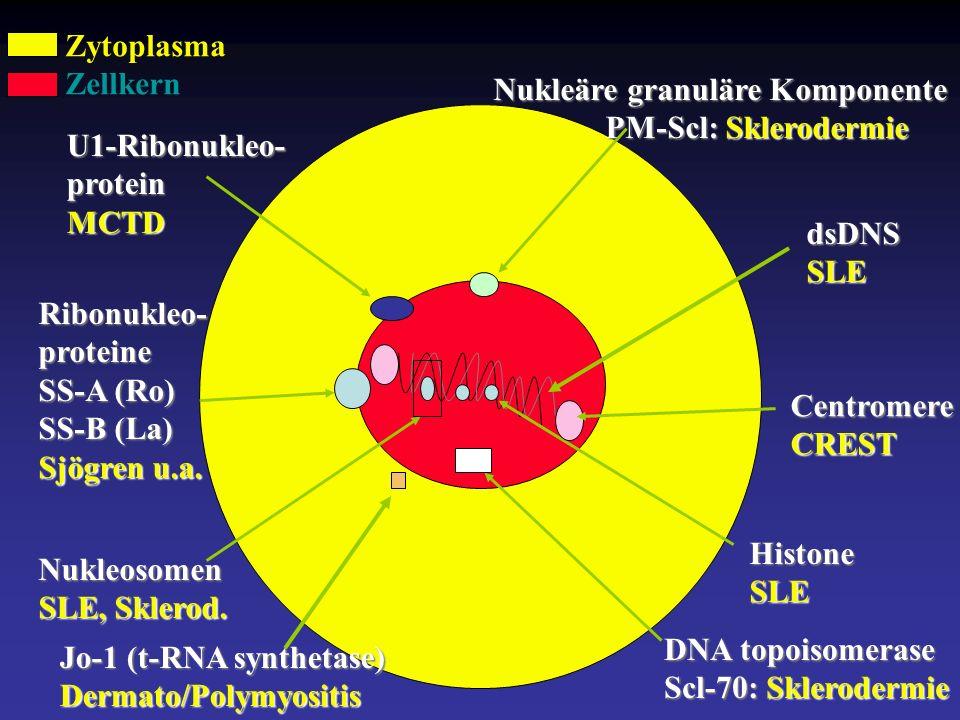 dsDNSSLE HistoneSLE Nukleosomen SLE, Sklerod.