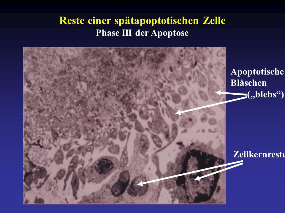 """Reste einer spätapoptotischen Zelle Phase III der Apoptose Zellkernreste Apoptotische Bläschen (""""blebs )"""
