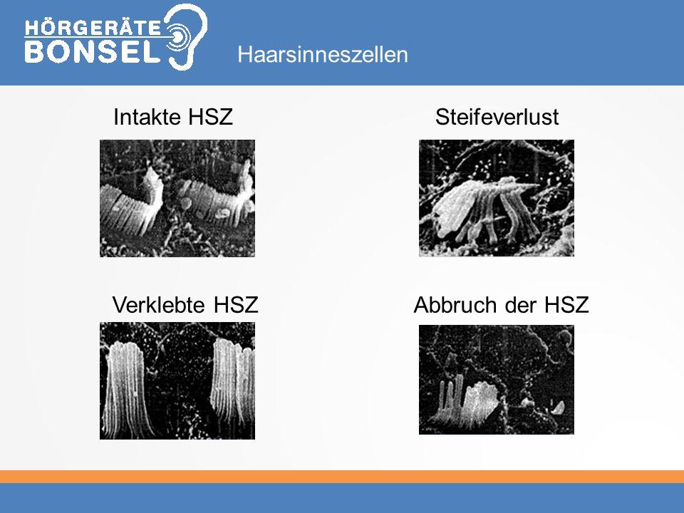 Intakte HSZ Haarsinneszellen Steifeverlust Verklebte HSZAbbruch der HSZ