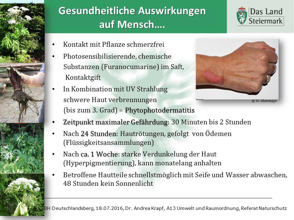 Kontakt mit Pflanze schmerzfrei Photosensibilisierende, chemische Substanzen (Furanocumarine) im Saft, Kontaktgift In Kombination mit UV Strahlung sch