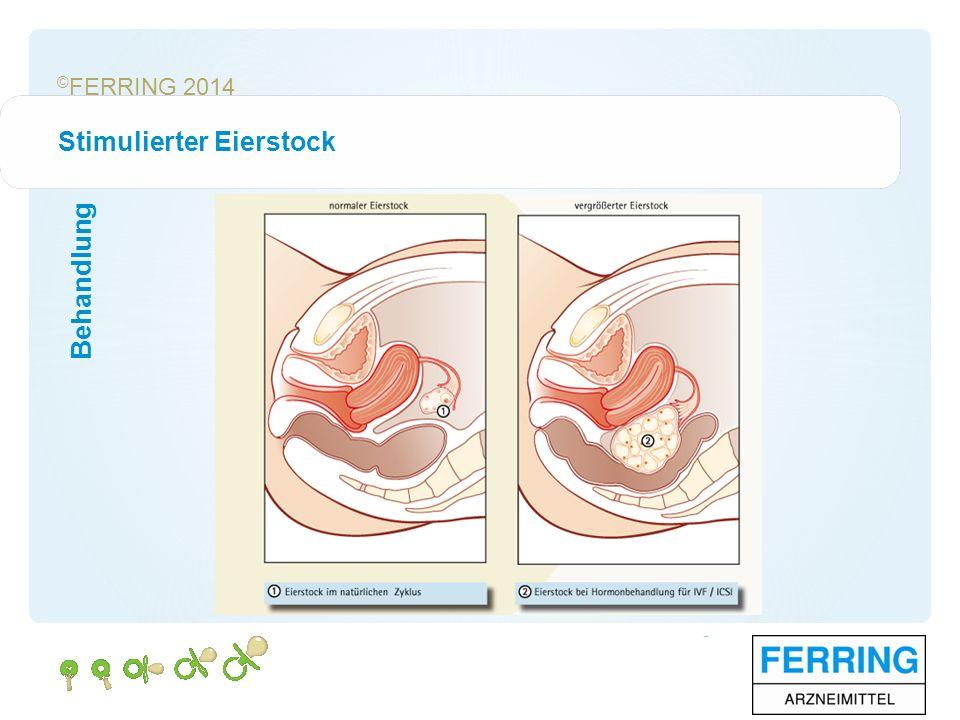 © FERRING 2014 Stimulierter Eierstock Behandlung