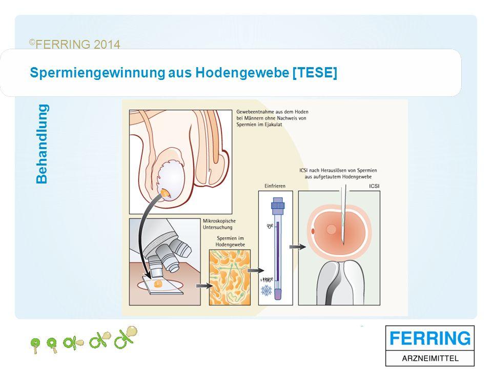© FERRING 2014 Behandlung Spermiengewinnung aus Hodengewebe [TESE]