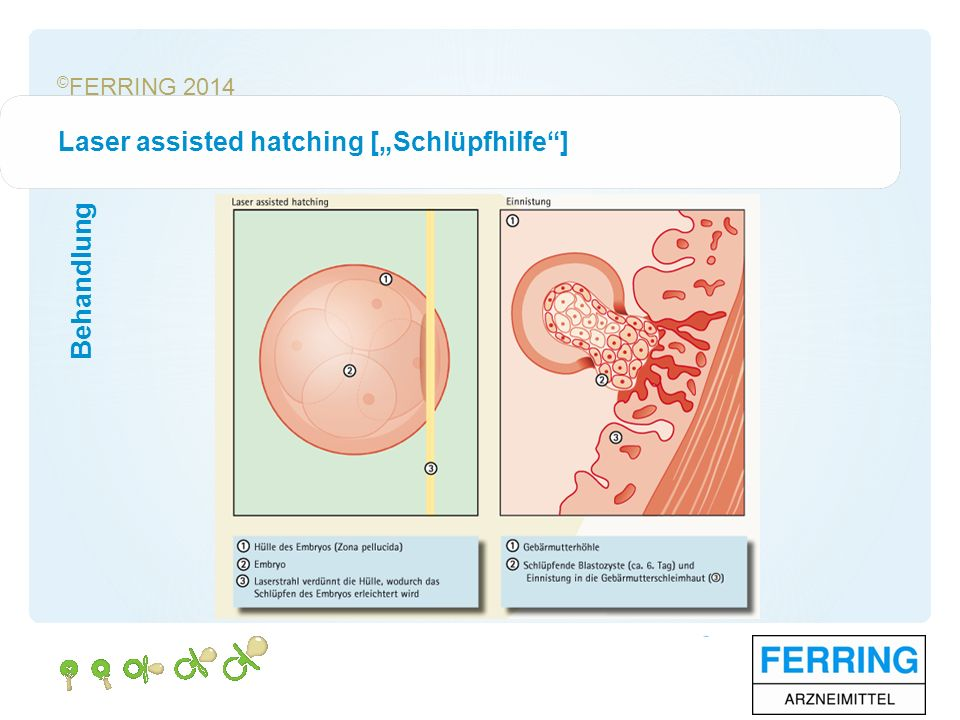 "© FERRING 2014 Behandlung Laser assisted hatching [""Schlüpfhilfe ]"