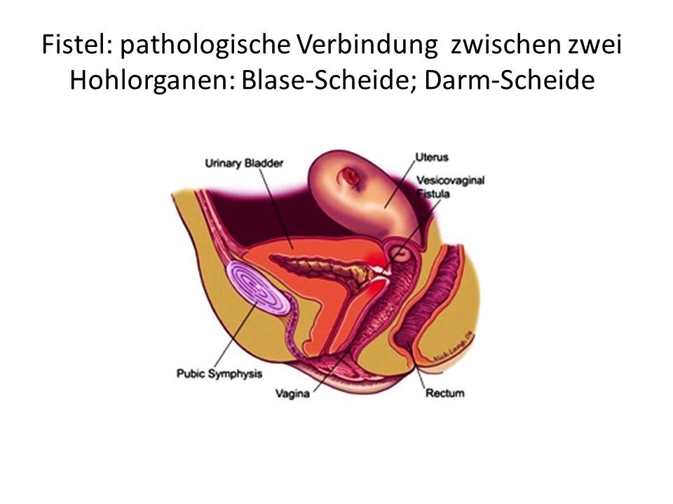 Fistel: pathologische Verbindung zwischen zwei Hohlorganen: Blase-Scheide; Darm-Scheide