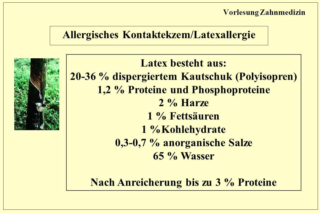 Vorlesung Zahnmedizin Allergisches Kontaktekzem/Latexallergie Latex besteht aus: 20-36 % dispergiertem Kautschuk (Polyisopren) 1,2 % Proteine und Phosphoproteine 2 % Harze 1 % Fettsäuren 1 %Kohlehydrate 0,3-0,7 % anorganische Salze 65 % Wasser Nach Anreicherung bis zu 3 % Proteine