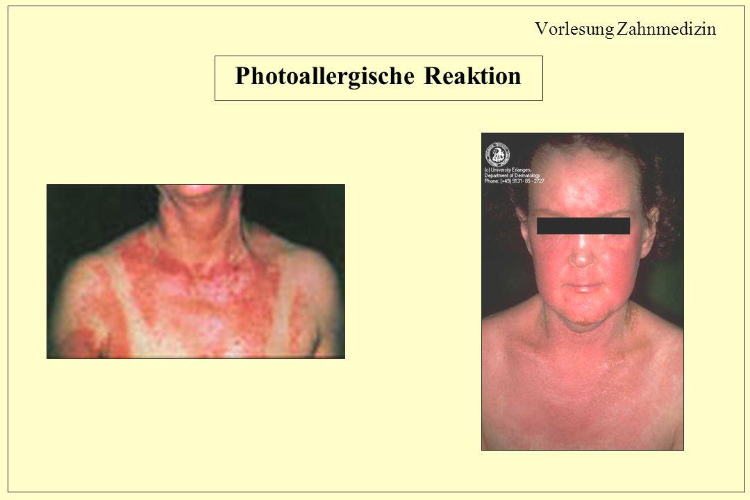 Vorlesung Zahnmedizin Photoallergische Reaktion