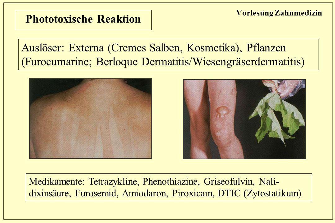 Vorlesung Zahnmedizin Phototoxische Reaktion Auslöser: Externa (Cremes Salben, Kosmetika), Pflanzen (Furocumarine; Berloque Dermatitis/Wiesengräserdermatitis) Medikamente: Tetrazykline, Phenothiazine, Griseofulvin, Nali- dixinsäure, Furosemid, Amiodaron, Piroxicam, DTIC (Zytostatikum)