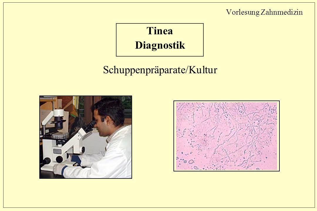 Vorlesung Zahnmedizin Tinea Diagnostik Schuppenpräparate/Kultur