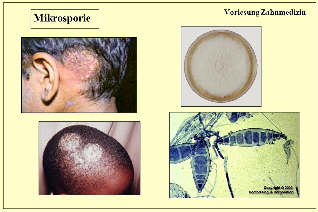 Vorlesung Zahnmedizin Mikrosporie