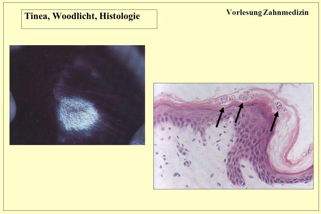 Vorlesung Zahnmedizin Tinea, Woodlicht, Histologie