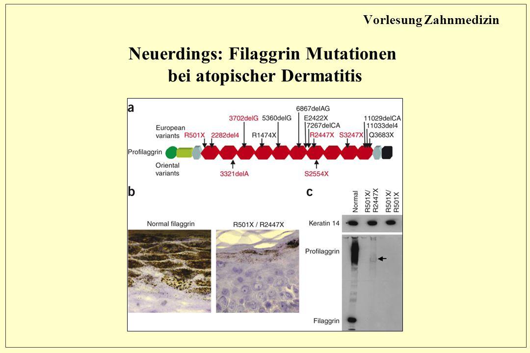 Vorlesung Zahnmedizin Neuerdings: Filaggrin Mutationen bei atopischer Dermatitis