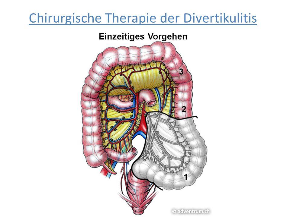 Chirurgische Therapie der Divertikulitis Einzeitiges Vorgehen