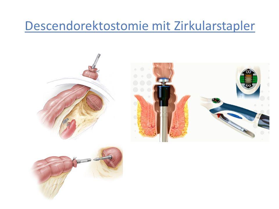 Descendorektostomie mit Zirkularstapler