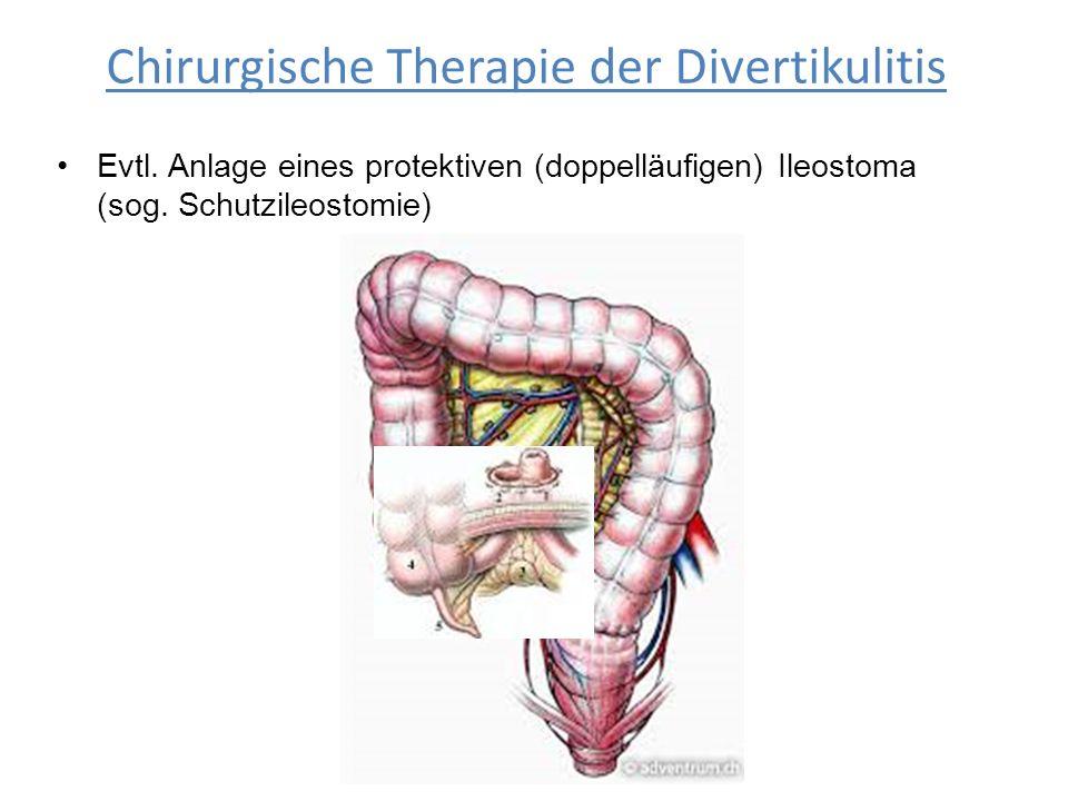 Evtl. Anlage eines protektiven (doppelläufigen) Ileostoma (sog. Schutzileostomie) Chirurgische Therapie der Divertikulitis