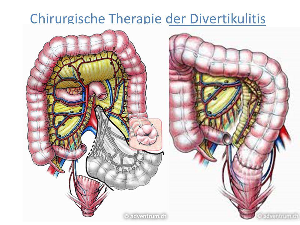 Chirurgische Therapie der Divertikulitis Zweizeitiges Vorgehen Kontinuitätswiederherstellung in der sogenannten 'Hartmann- Wiederanschlußoperation' La