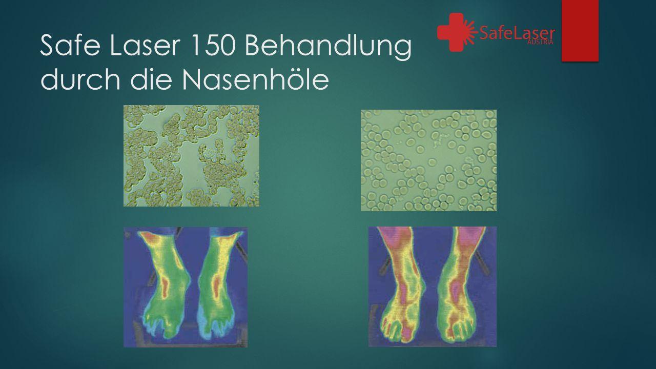 Safe Laser 150 Behandlung durch die Nasenhöle