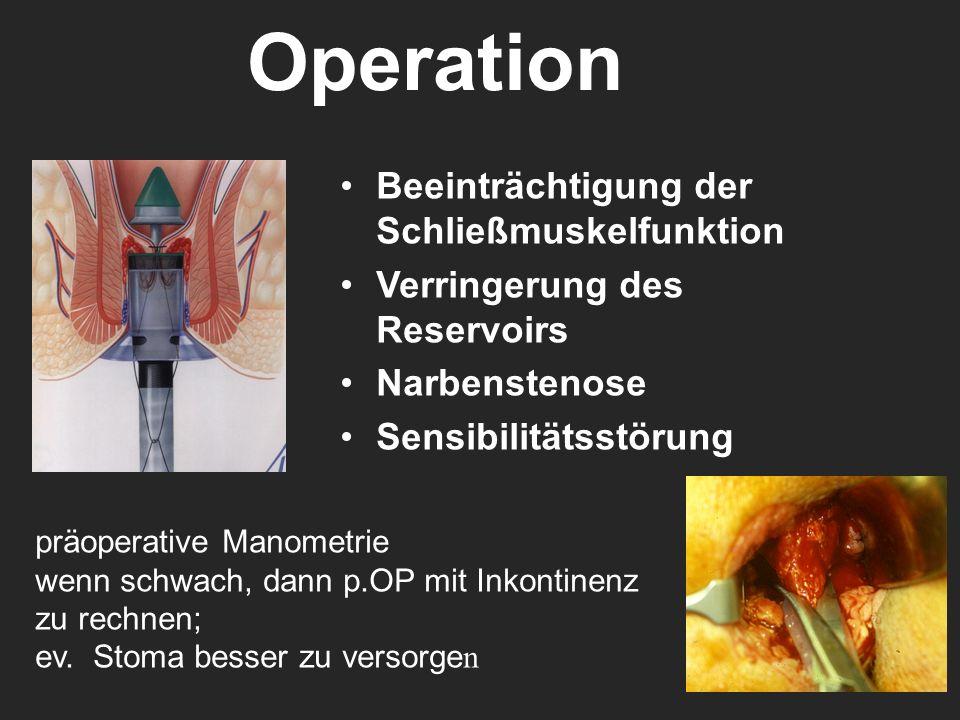 Operation Beeinträchtigung der Schließmuskelfunktion Verringerung des Reservoirs Narbenstenose Sensibilitätsstörung präoperative Manometrie wenn schwa
