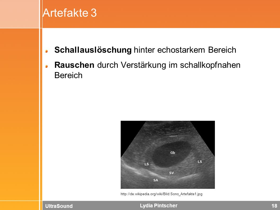 UltraSound Lydia Pintscher 18 Artefakte 3 Schallauslöschung hinter echostarkem Bereich Rauschen durch Verstärkung im schallkopfnahen Bereich http://de.wikipedia.org/wiki/Bild:Sono_Artefakte1.jpg