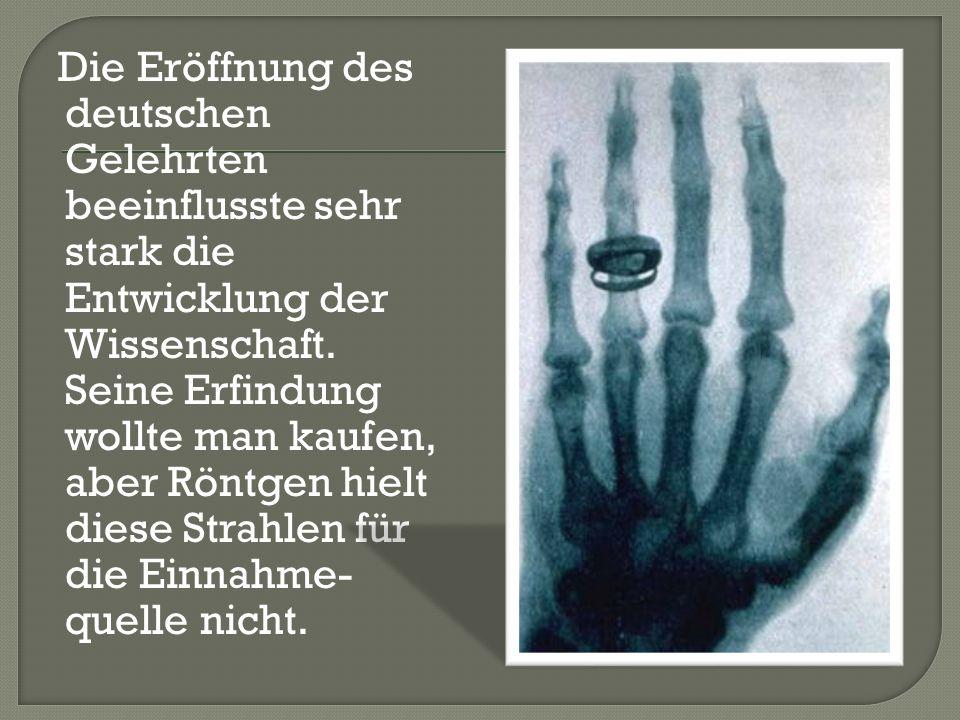 Die Eröffnung des deutschen Gelehrten beeinflusste sehr stark die Entwicklung der Wissenschaft. Seine Erfindung wollte man kaufen, aber Röntgen hielt